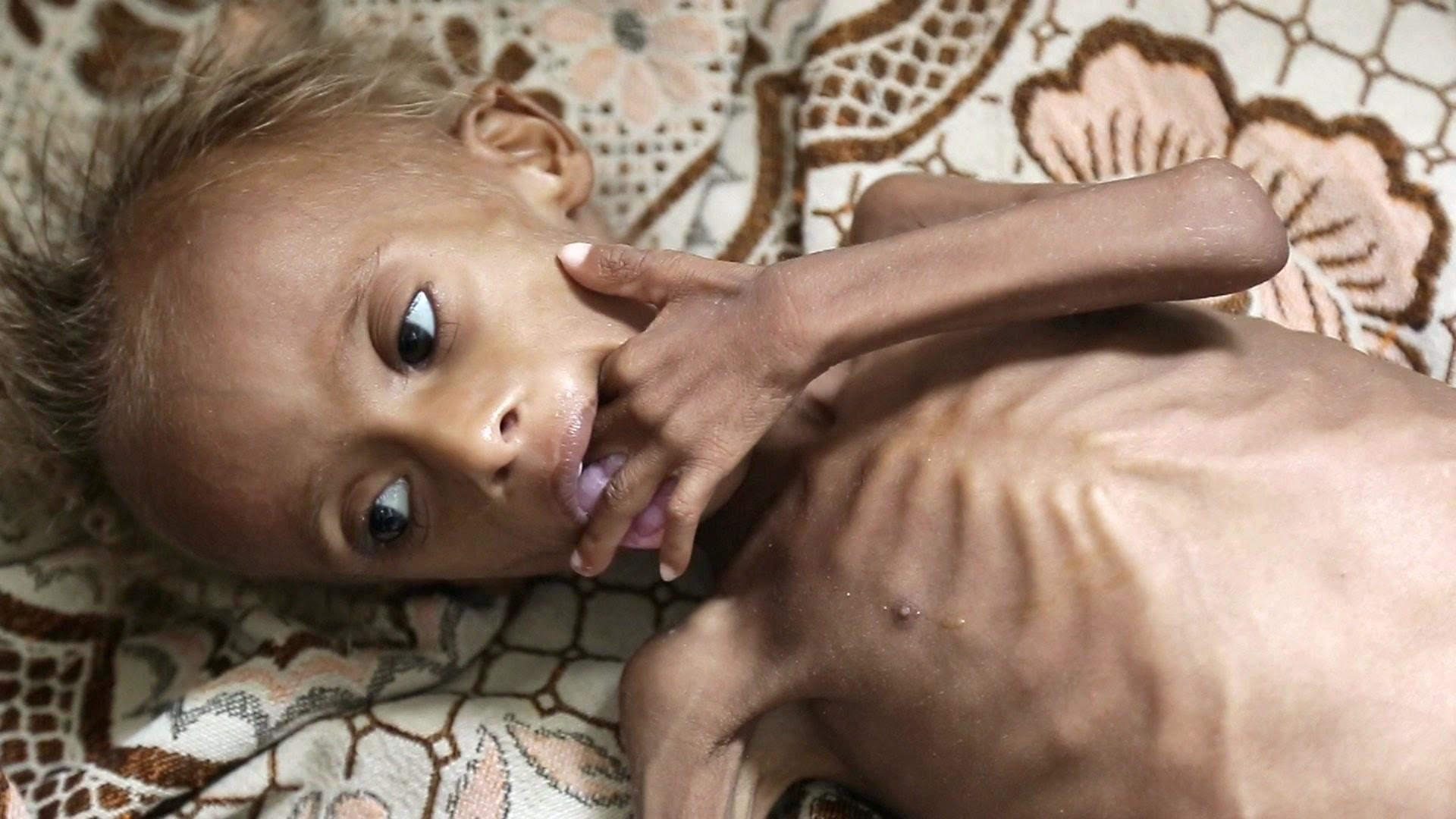 desnutrición aguda